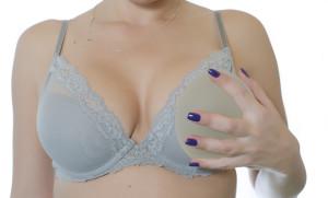 mamoplastia_troca de protese