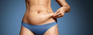 10 mitos e verdades sobre a Lipoaspiração